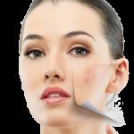 Мазна кожа козметика